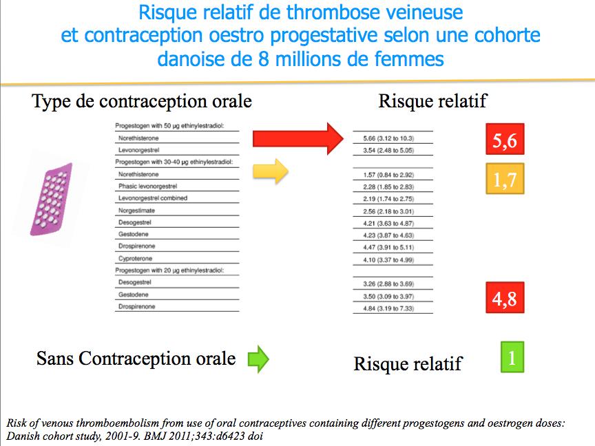 operation contraception femme
